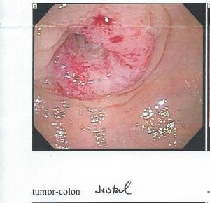 Who would have imagined that this beast would initiate my sobriety. Colon cancer tumor, 2011. Photo courtesy my doctor.